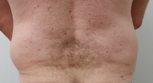 Exilis Elite Stubborn Fat Melting and Body Contouring - Before